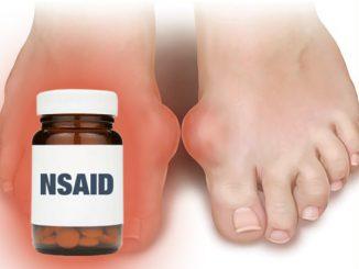Khi nào điều trị gout bằng NSAID